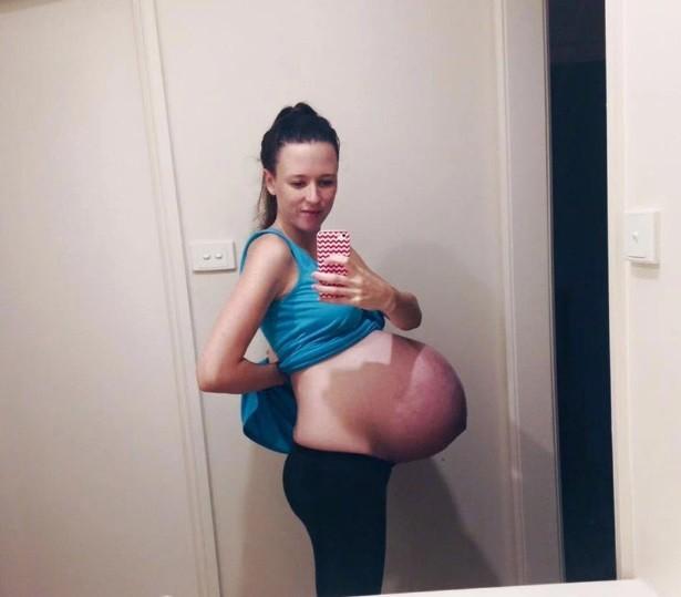 blog_pregnant