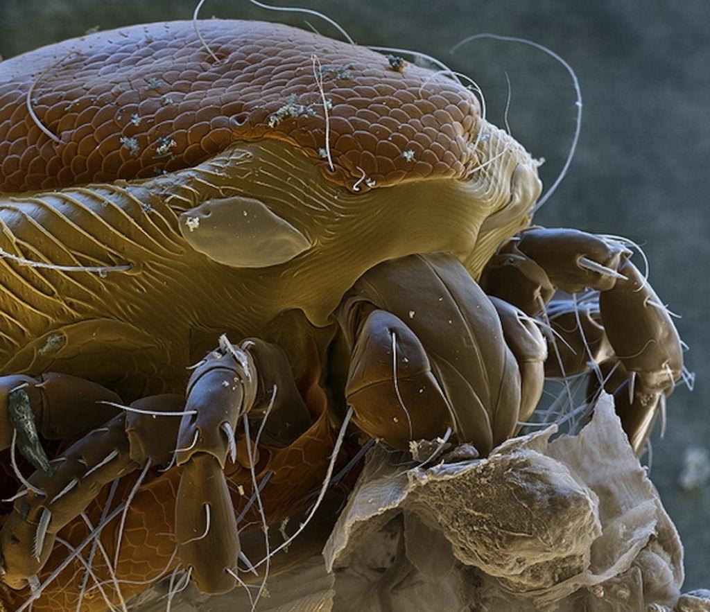 coisas sobre microscopio 11