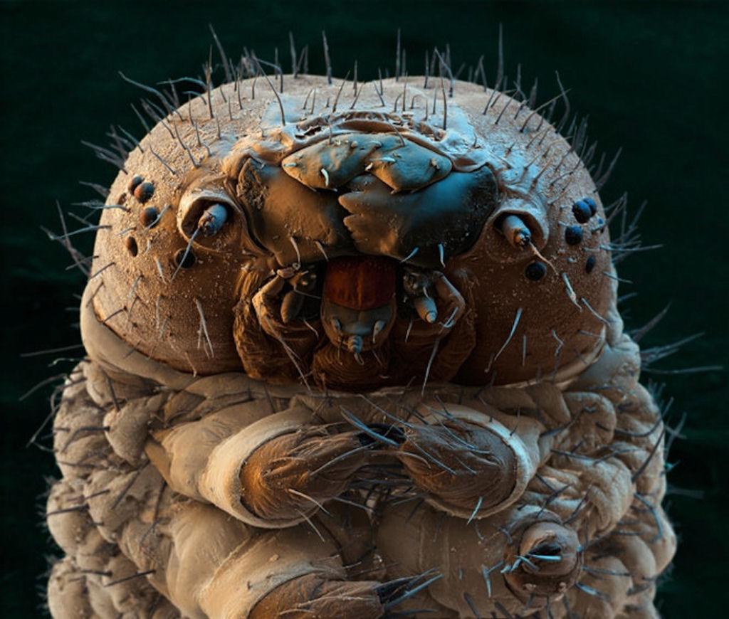 coisas sobre microscopio 15