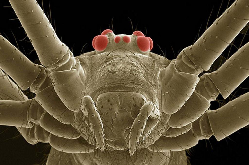 coisas sobre microscopio 31