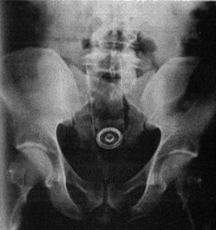 objetos interior cuerpo rayos x 1