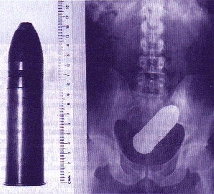 objetos interior cuerpo rayos x 12