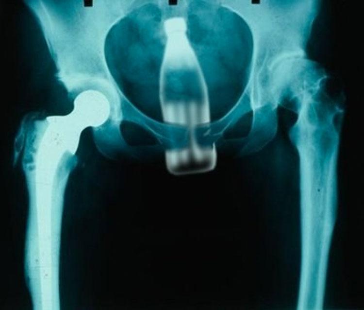 objetos interior cuerpo rayos x 13