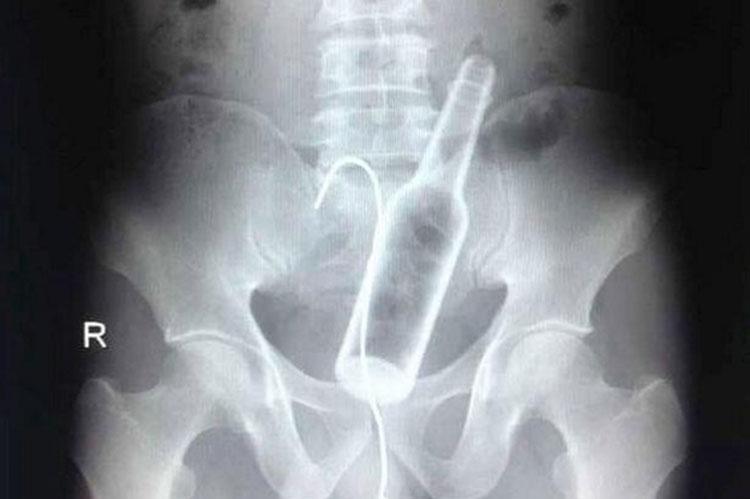 objetos interior cuerpo rayos x 14
