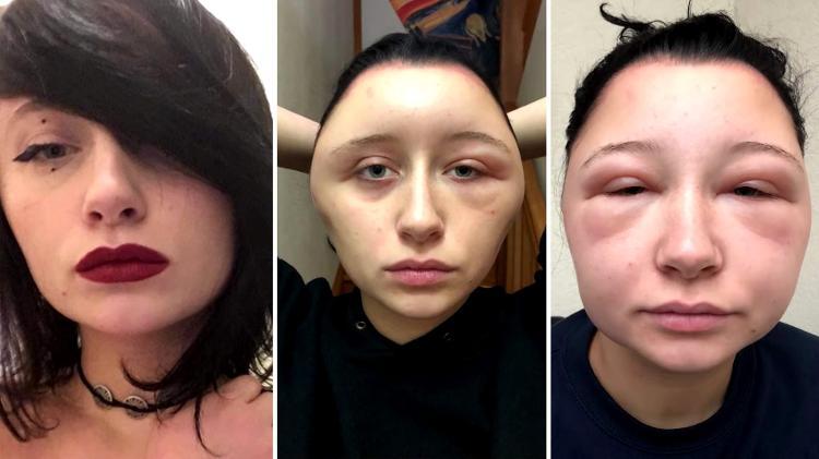 reacao alergica